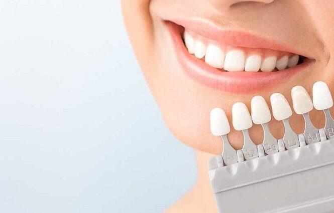 Teeth Whitening in Canada